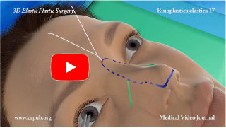 sollevamento del naso senza intervento chirurgico invasivo, con filo di sutura chirurgica Elasticum®